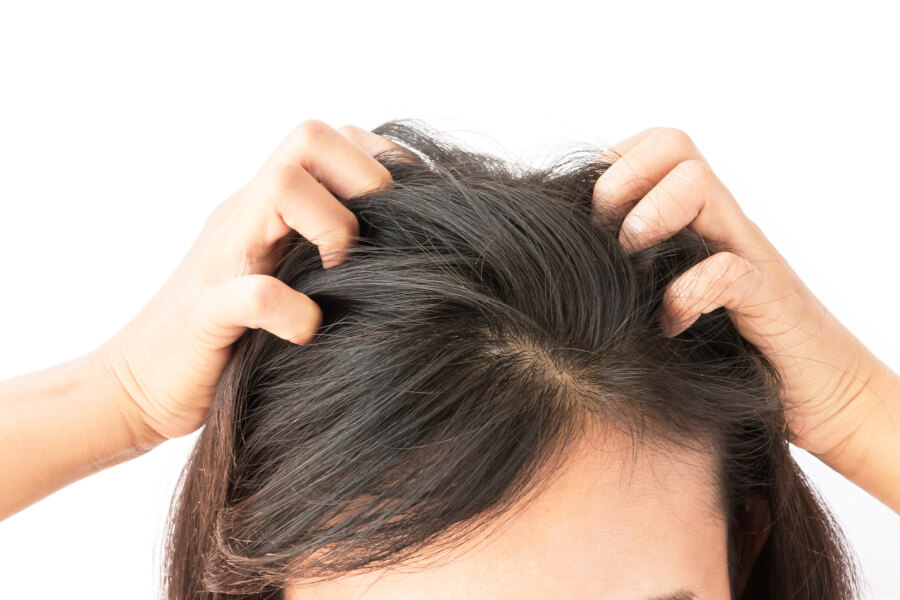 Dandruff vs Dry Scalp: What's The Difference + Natural Solutions thumbnail