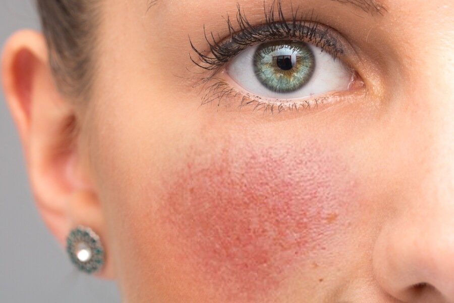 Rosacea: Steer Clear of these Foods for Calm Skin thumbnail